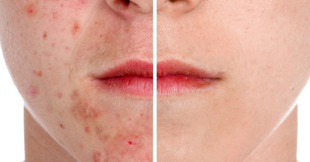 Here are behaviors and lifestyle habits that can make acne worse